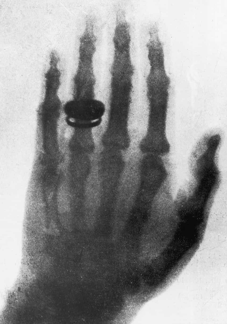 First X-ray (hand of Röntgen's wife)